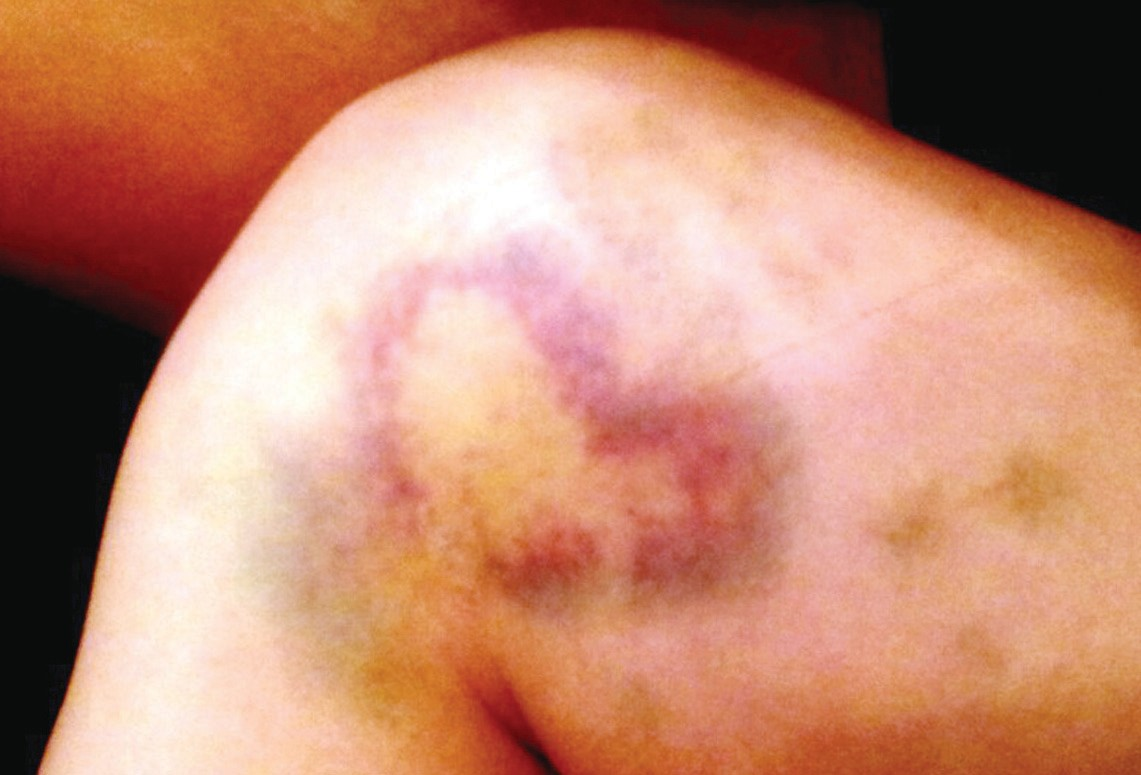 This is the bruise that appeared on Jayci Korus' leg as the wound she sustained in her texting while driving accident began to heal. The heart shaped bruise stayed for approximately two weeks
